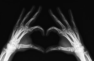 X_Ray_Heart_by_mmattes